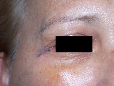 Dermatologo Torino - BCC del canto esterno - post-intervento