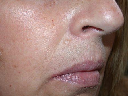 Dermatologo Torino - Epitelioma basocellulare