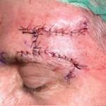 Dermatologo Torino - Dermochirurgia - Intervento di dermochirurgia - sutura