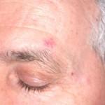 Dermatologo Torino - Dermochirurgia - Lesione