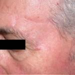 Dermatologo Torino - Post-operatorio intervento dermochirurgia