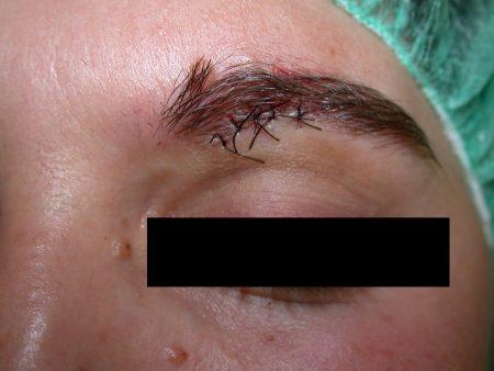 Dermatologo Torino - Dermochirurgia - neo post intervento