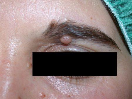 Dermatologo Torino - Dermochirurgia - neo pre-intervento