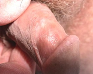 Dermatologo Torino - Infezione da hpv papilloma virus