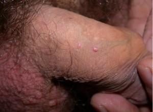 Dermatologo Torino - Malattie sessualmente trasmissibili - Infezione da Mollusco Contagioso