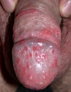 Dermatologo Torino - Malattie sessualmente trasmissibili - Herpes Genitale