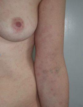 Dermatologo torino - malattie sessualmente trasmissibili - La sifilide
