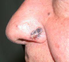 I tumori cutanei