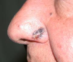 Dermatologo Torino - i tumori cutanei
