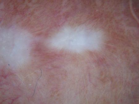 Dermatoscopia di lichen sclerosus (particolare)