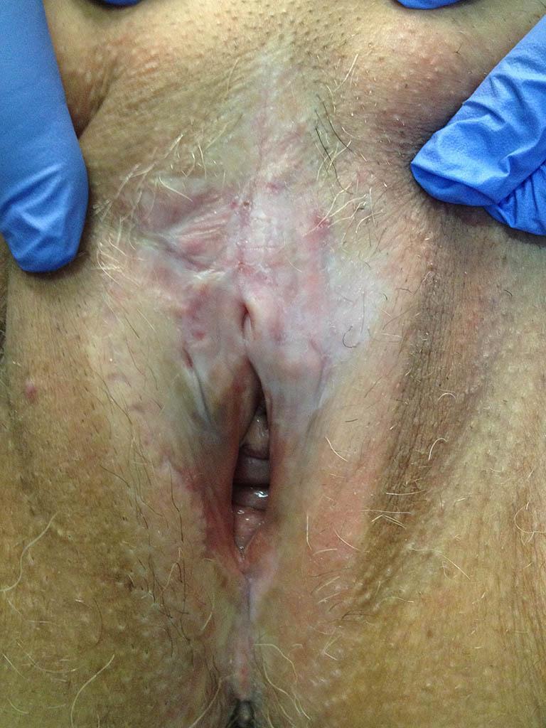 Lichen Sclerosus o Lichen Scleroatrofico (LSA)
